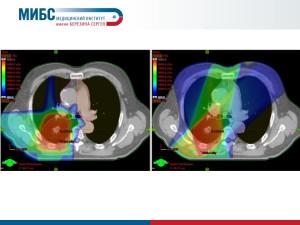 Протонная терапия при лечении рака легких